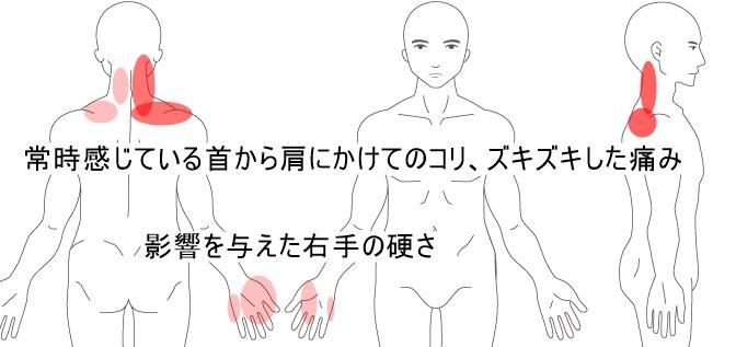 にかけて から 左 首 の 痛み 肩