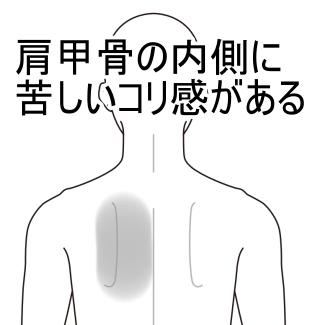 腸 症候群 ツボ 過敏 性