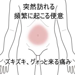過敏性腸症候群、IBS、腹痛、ガスだまり、ガス漏れ、下痢、札幌、白石区、鍼灸