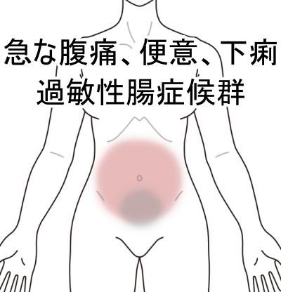 過敏性腸症候群、IBS、腹痛、下痢、札幌、白石区、鍼灸