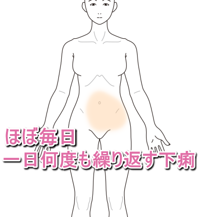 IBS下痢型14